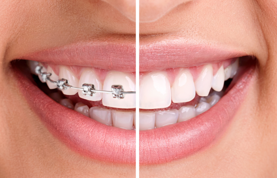 After Your Orthodontic Treatment